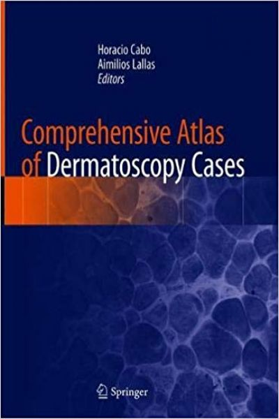 Comprehensive Atlas of Dermatoscopy Cases 1st ed. 2018 Edition