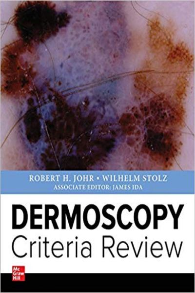 Dermoscopy Criteria Review 1st Edition PDF