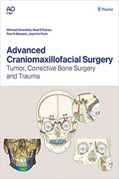 Advanced Craniomaxillofacial Surgery 1st Edition PDF
