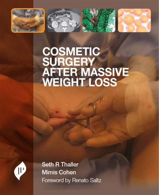 Cosmetic Surgery After Massive Weight Loss 1st Edition