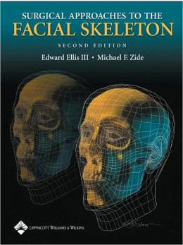 Surgical Approaches to the Facial Skeleton Edition 2