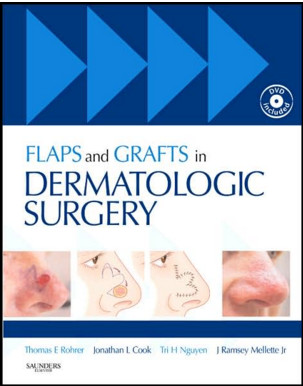 Flaps and Grafts in Dermatologic Surgery: Text