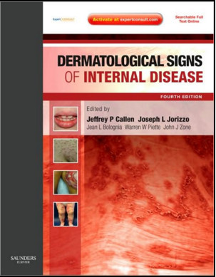 Dermatological Signs of Internal Disease, 4th Edition