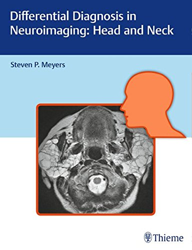 Differential Diagnosis in Neuroimaging: Head and Neck 1st Edition