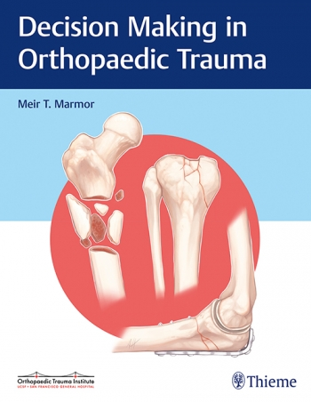 Decision Making in Orthopaedic Trauma 1st Edition by Meir Marmor (Author)