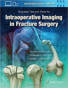 Illustrated Tips and Tricks for Intraoperative Imaging in Fracture Surgery EPUB