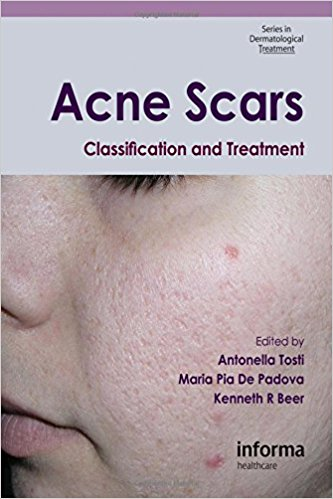 Acne Scars: Classification and Treatment (Series in Dermatological Treatment) 1st Edition PDF