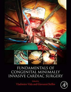 Fundamentals of Pediatric Minimally Invasive Cardiac Surgery PDF