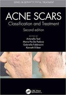 Acne Scars: Classification and Treatment, 2nd Edition PDF