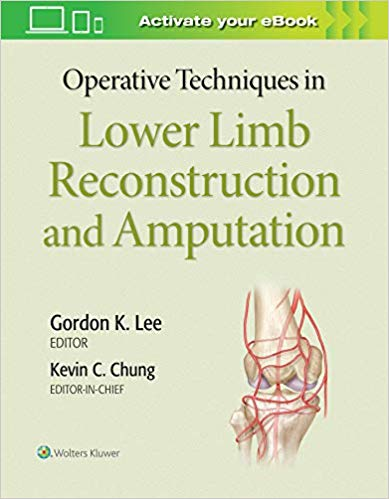 Operative Techniques in Lower Limb Reconstruction and Amputation  CHM