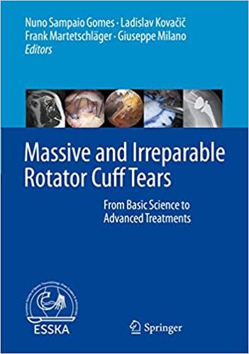 Massive and Irreparable Rotator Cuff Tears: From Basic Science to Advanced Treatments 1st ed. 2020 Edition PDF