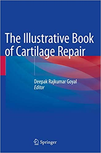 The Illustrative Book of Cartilage Repair 1st ed. 2021 Edition PDF