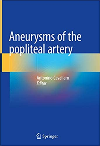 Aneurysms of the Popliteal Artery 1st ed. 2021 Edition PDF